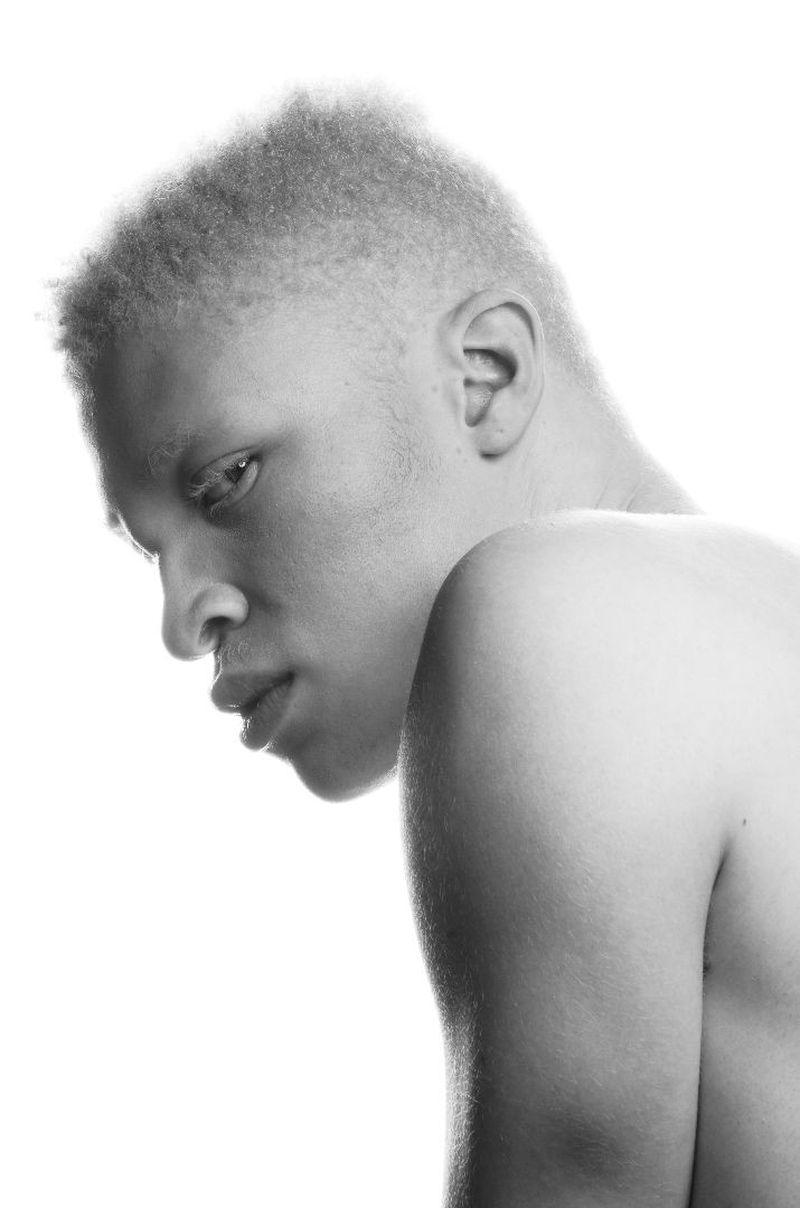 albino black model - 736×1111
